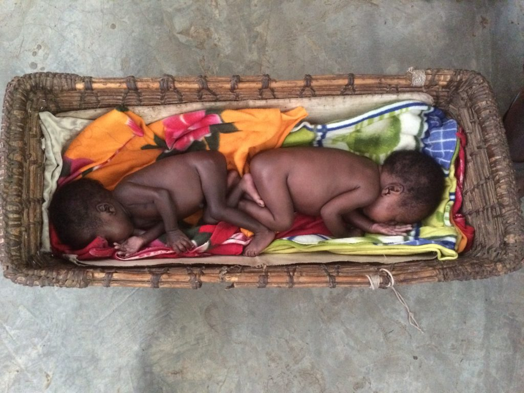 Tiny Twins at Kule Refugee Camp, Ethiopia